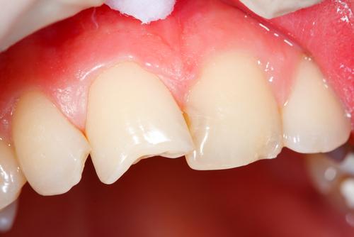 Сломался кусок зуба что делать