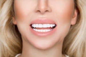gum contouring procedure