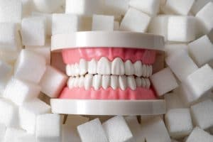 toothaches tooth decay
