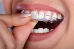 teeth grinding bruxism appliance
