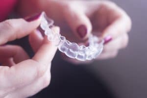 clearcorrect aligner