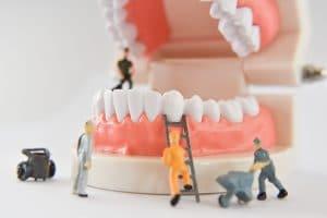 astoria dental contouring