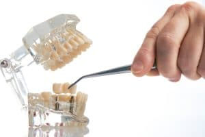 dental implant restoration astoria