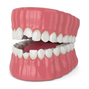astoria chipped tooth dental emergency