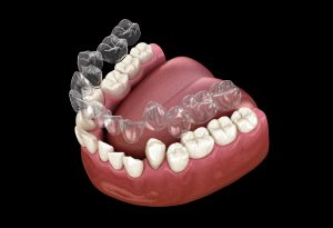 astoria clearcorrect braces