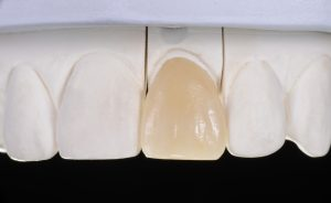 astoria dental veneers