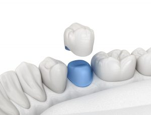 astoria dental crown