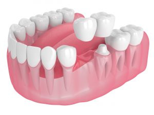 astoria dental bridges