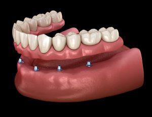 astoria full implant dentures