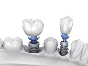 astoria tooth loss