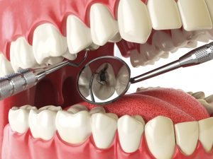 astoria root canal