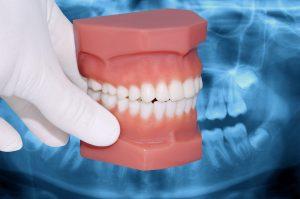 astoria teeth grinding