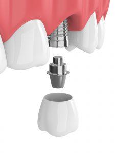 astoria implant restoration