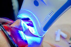 astoria dental filling