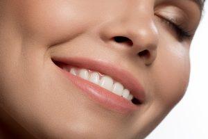 astoria dental bonding