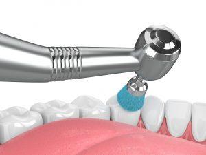 astoria teeth cleaning